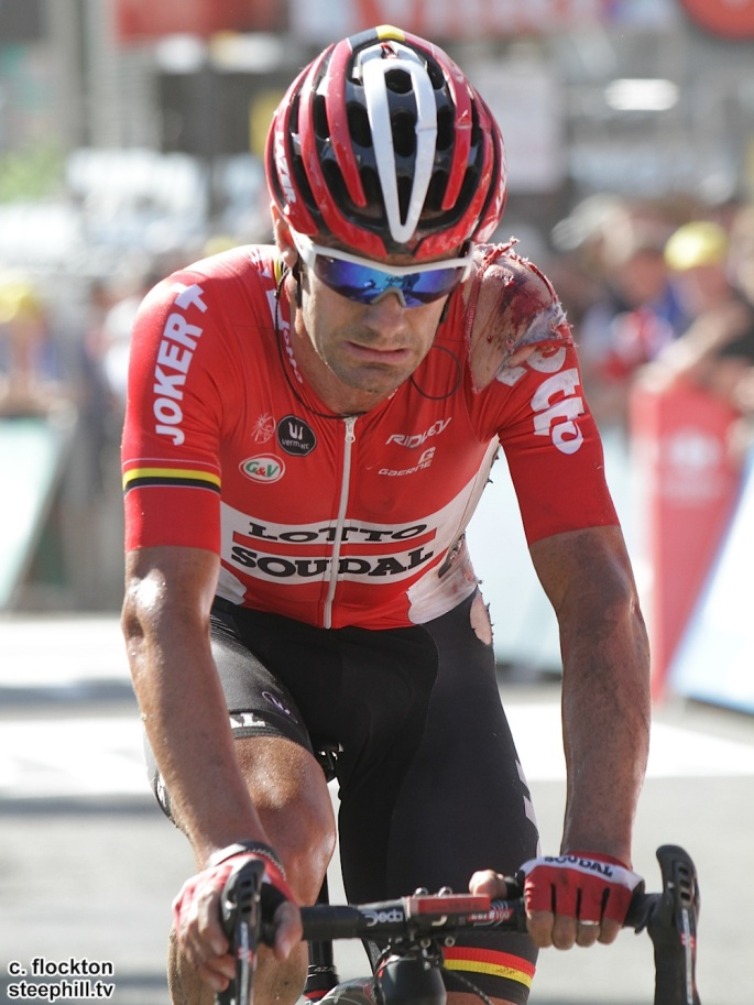 Greg Henderson Australia Lotto Soudal also shows evidence of injuries